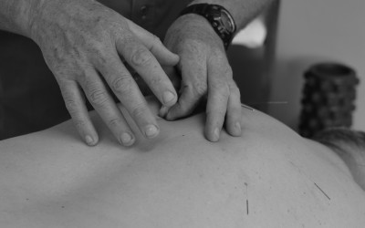Informed Consent and Notes for Dry Needling